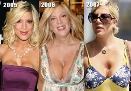 Les 14 plus gros ratés de la chirurgie esthétique-tspelling