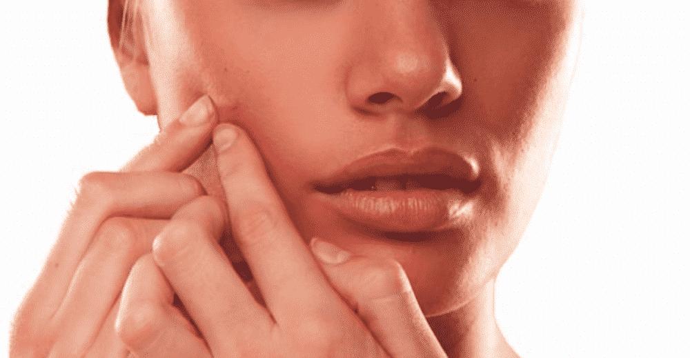 15 façons de soigner un bouton en une nuit !