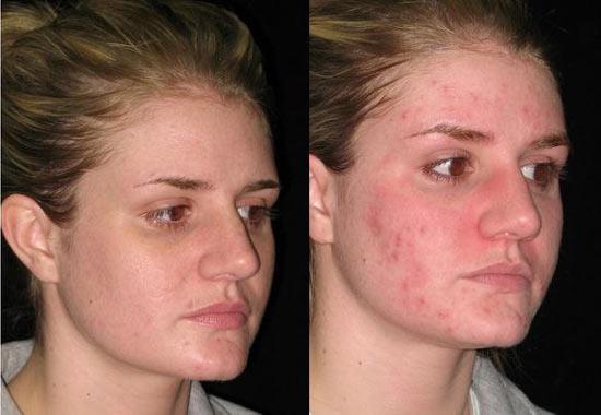 Extrêmement Masque à la carotte anti cicatrices d'acné GM38
