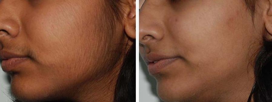 traitements naturels pour enlever les poils ind sirables du visage. Black Bedroom Furniture Sets. Home Design Ideas