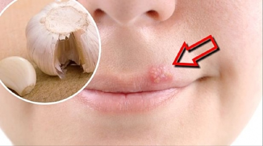 Aphtes : les ulcres de la bouche - allodocteursfr