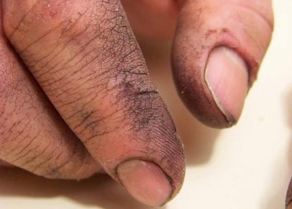 un-recruteur-lui-demande-de-laver-les-mains-de-son-pere-pour-une-incroyable-raison