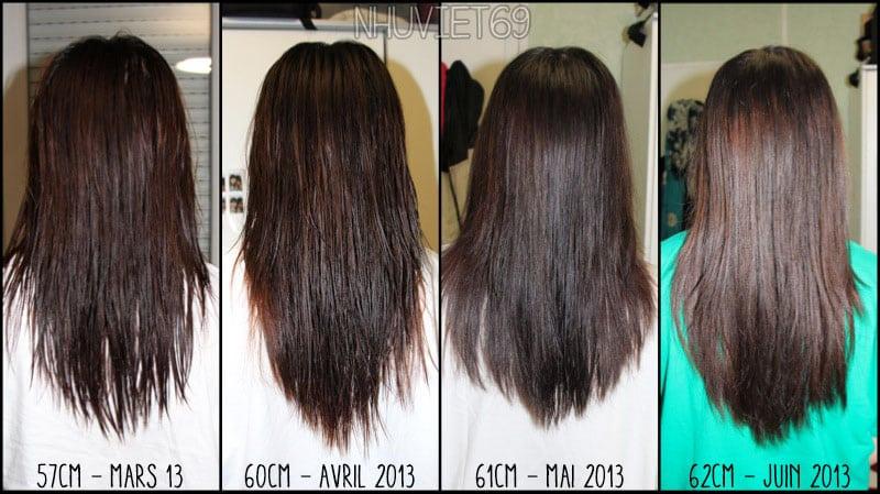 Les vitamines du groupe à de la chute des cheveux dans les ampoules les rappels