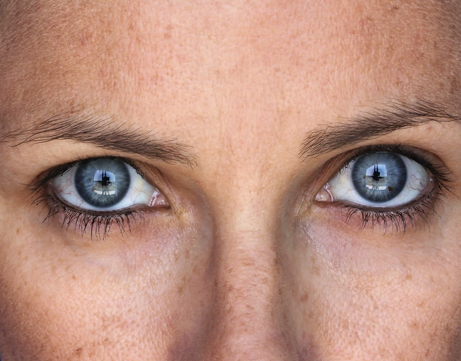fumant vieillissement de la peau
