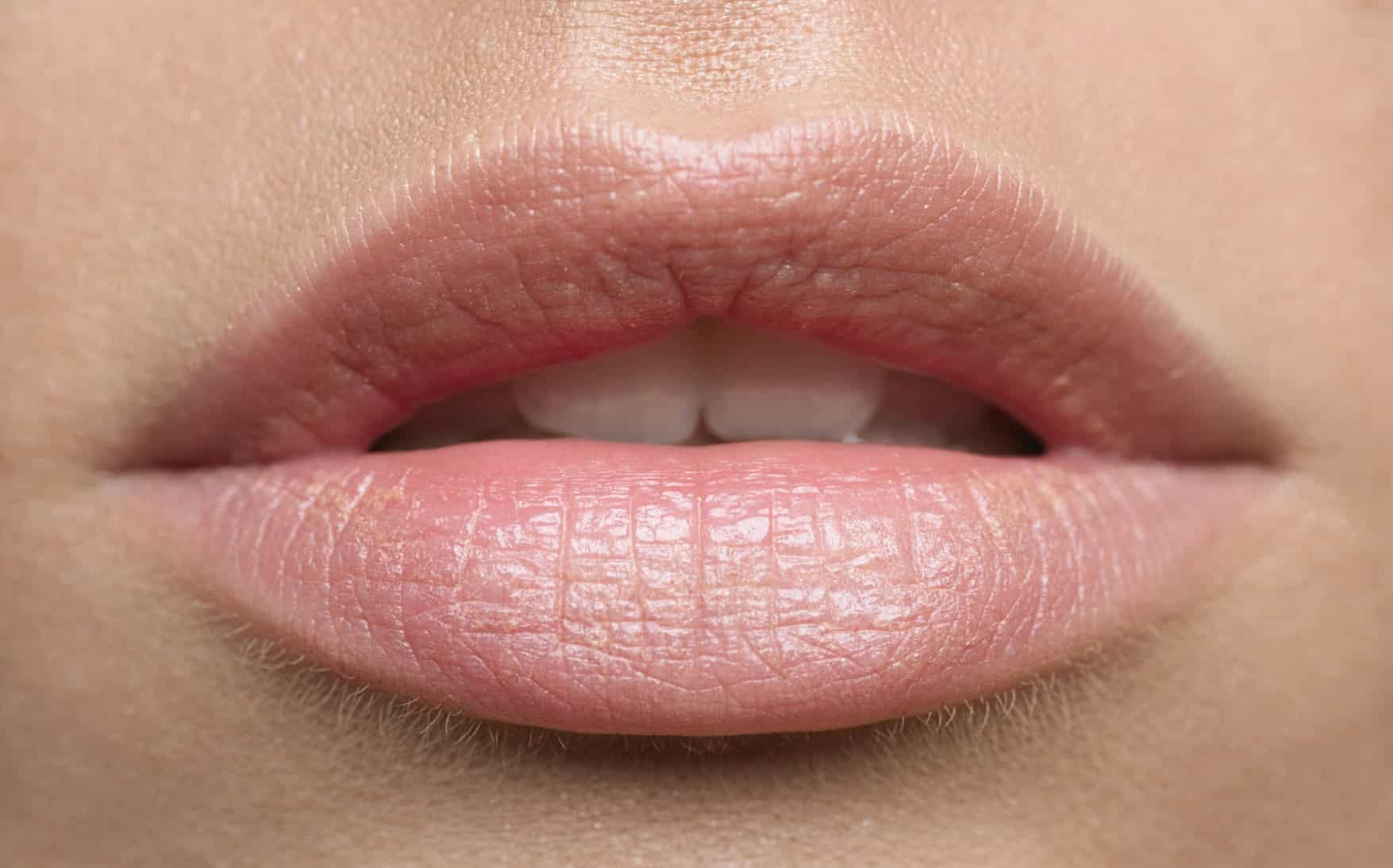 Are dark spots on lips herpes or another type of skin ...