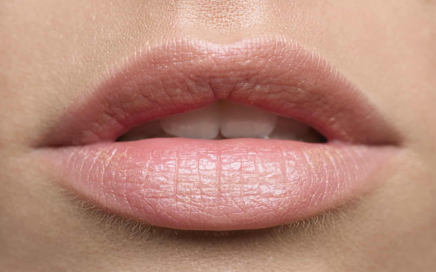 Préférence 4 conseils pour avoir des lèvres roses naturellement UT45