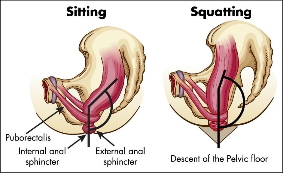 Source : http://www.empoderasalud.com/corregir-la-postura-para-defecar-puede-ayudar-a-prevenir-problemas-de-salud/