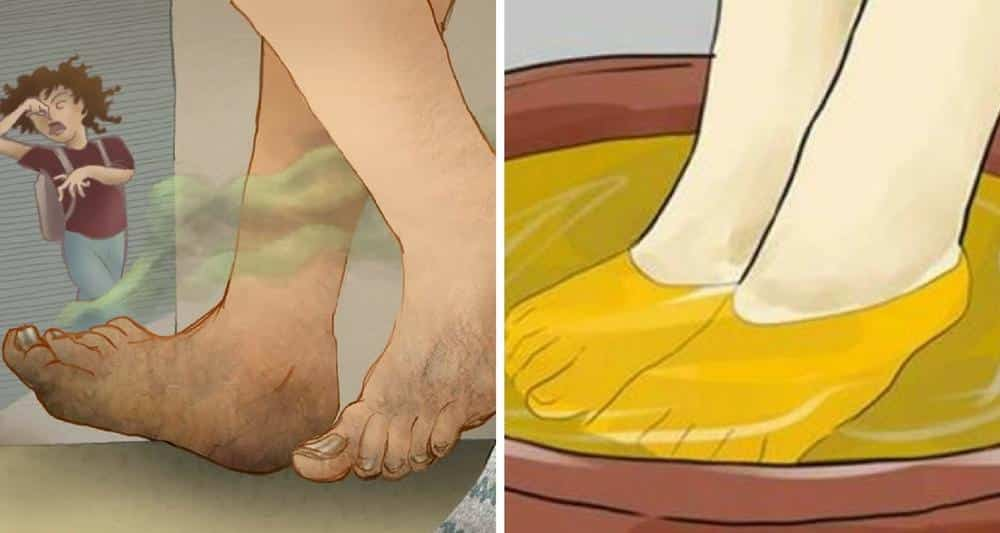 5 astuces pour vous d barrasser des mauvaises odeurs des pieds. Black Bedroom Furniture Sets. Home Design Ideas