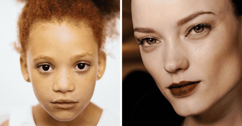 5 signes de beauté qui sont en réalité des anomalies génétiques 6