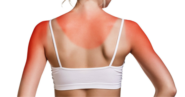 5 Remèdes naturels contre les coups de soleil 8